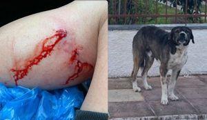 Άγρια επίθεση σκύλου σε 21χρονο (Σκληρές εικόνες)